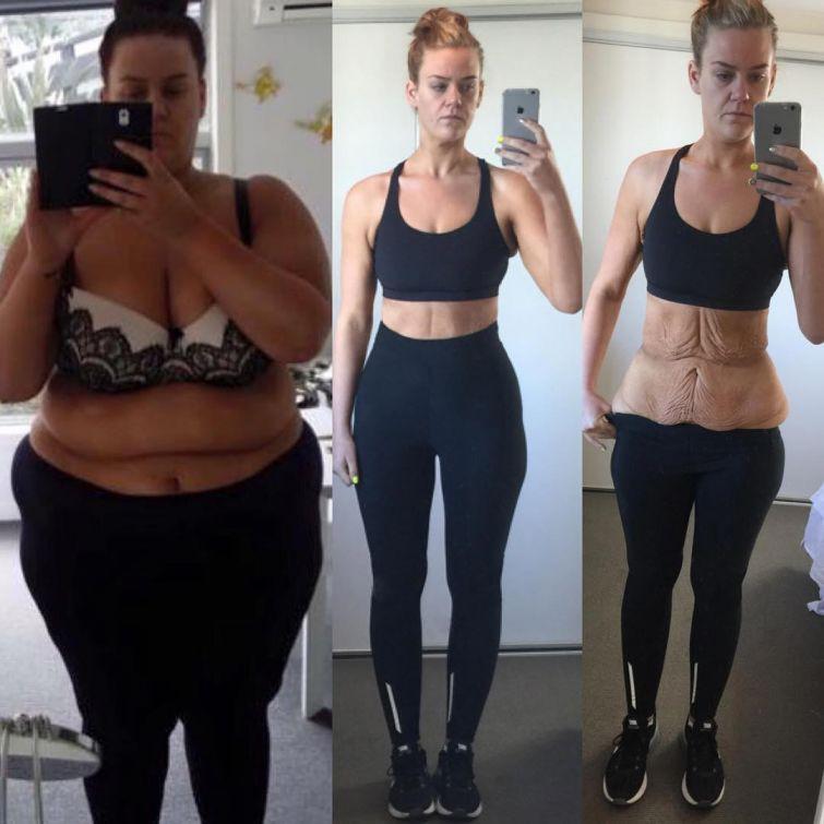 После того, как на неё посыпался шквал обвинений в подделке фотографии, он решила выложить ещё одну, вот эту До и после похудения, жизнь, лишний вес